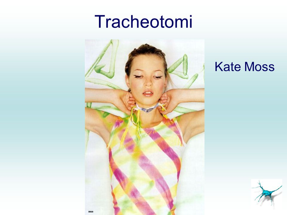 Tracheotomi Kate Moss