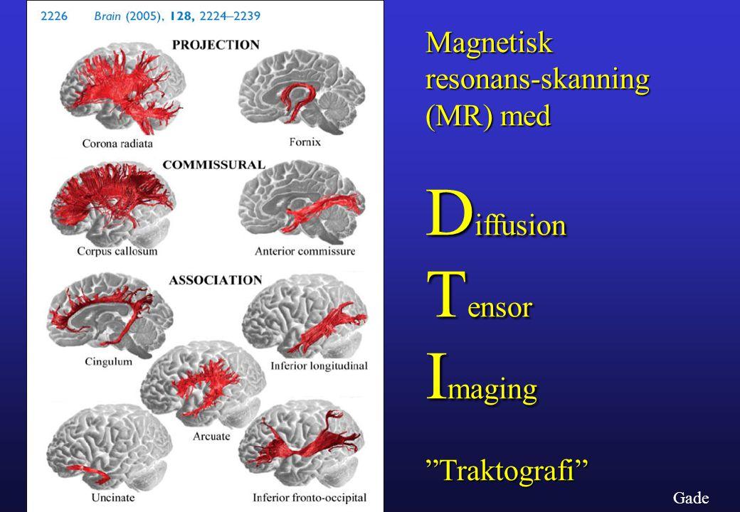Diffusion Tensor Imaging Magnetisk resonans-skanning (MR) med