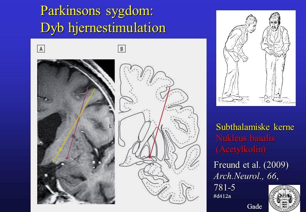 Parkinsons sygdom: Dyb hjernestimulation