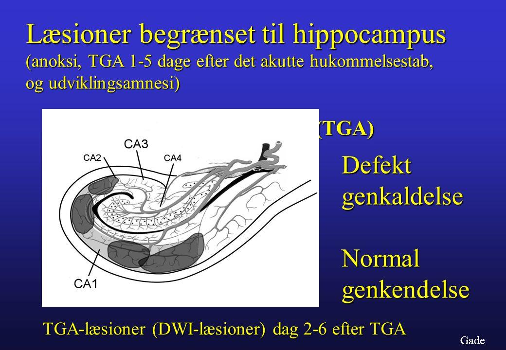 Læsioner begrænset til hippocampus (anoksi, TGA 1-5 dage efter det akutte hukommelsestab,