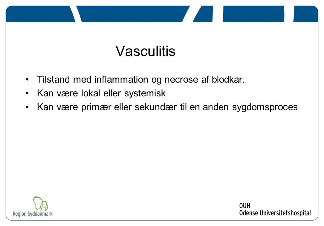 Vasculitis Tilstand med inflammation og necrose af blodkar.