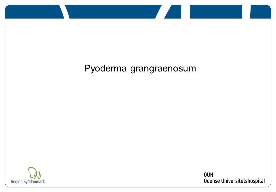 Pyoderma grangraenosum