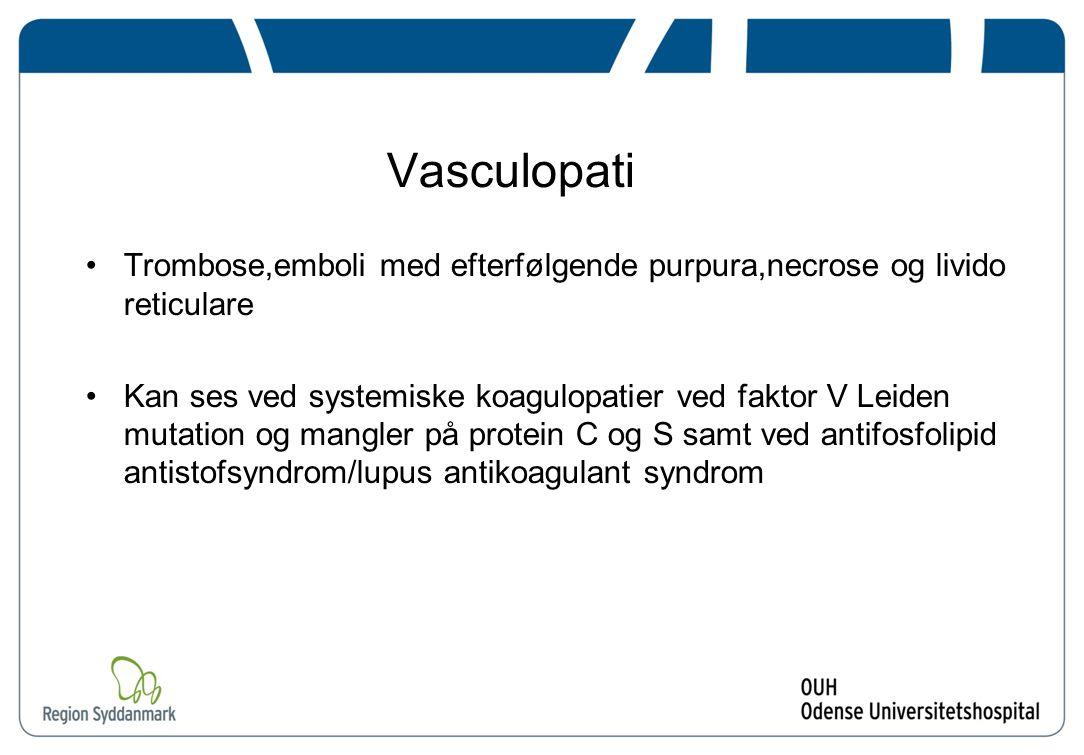 Vasculopati Trombose,emboli med efterfølgende purpura,necrose og livido reticulare.
