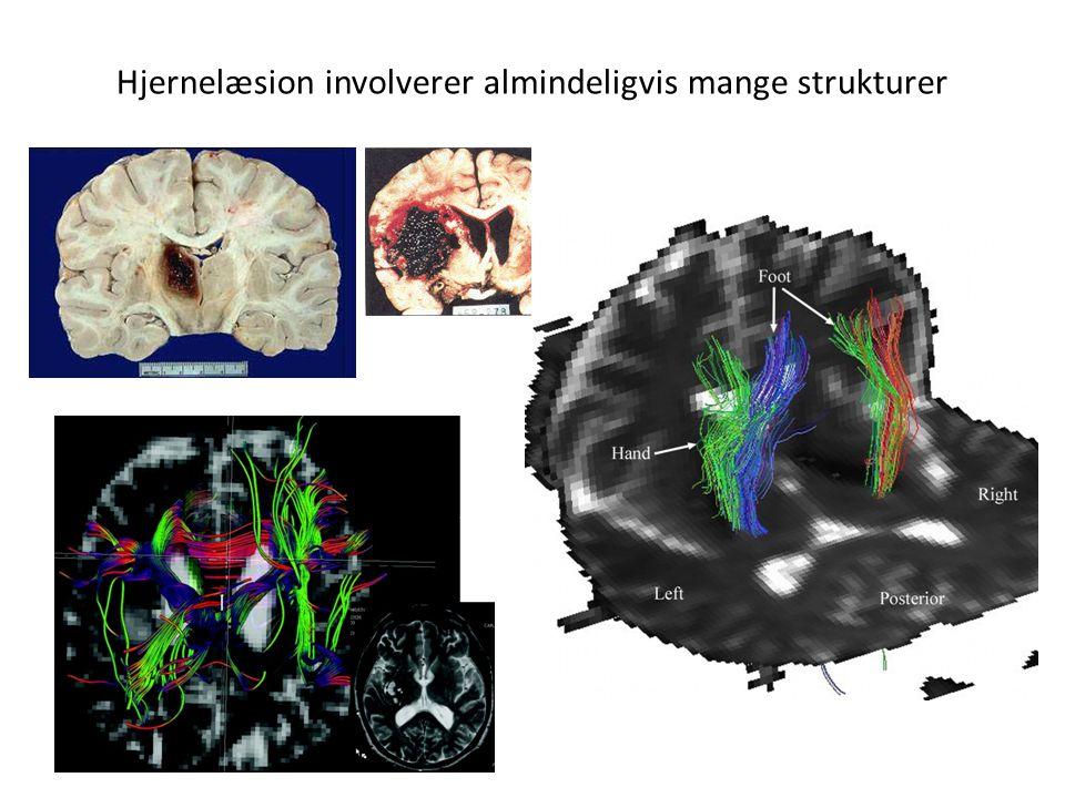 Hjernelæsion involverer almindeligvis mange strukturer