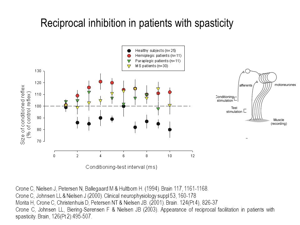 Reciprocal inhibition in patients with spasticity