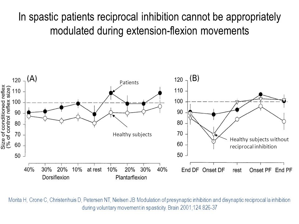 In spastic patients reciprocal inhibition cannot be appropriately modulated during extension-flexion movements