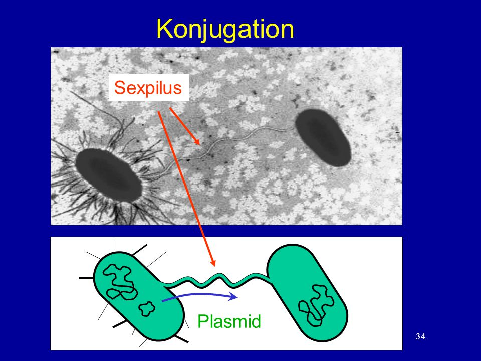 Konjugation Sexpilus Plasmid 34