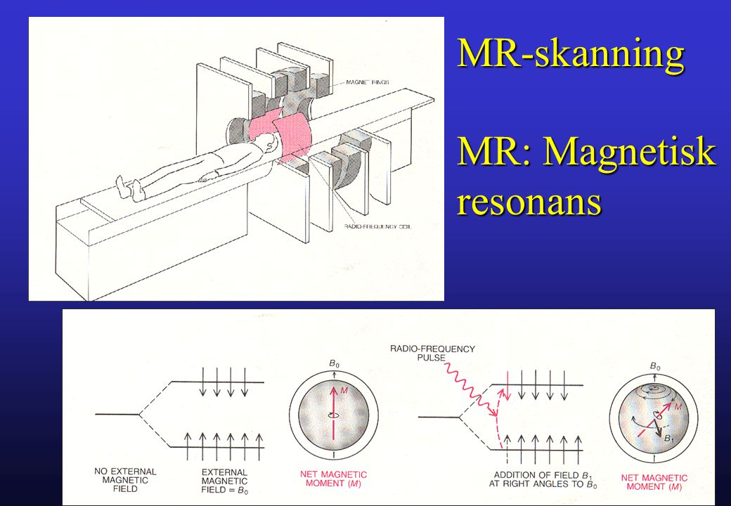 MR-skanning MR: Magnetisk resonans Gade