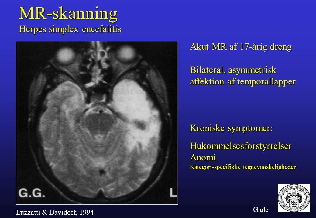 MR-skanning Herpes simplex encefalitis Akut MR af 17-årig dreng