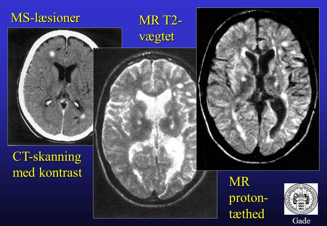 MS-læsioner MR T2- vægtet CT-skanning med kontrast MR proton- tæthed