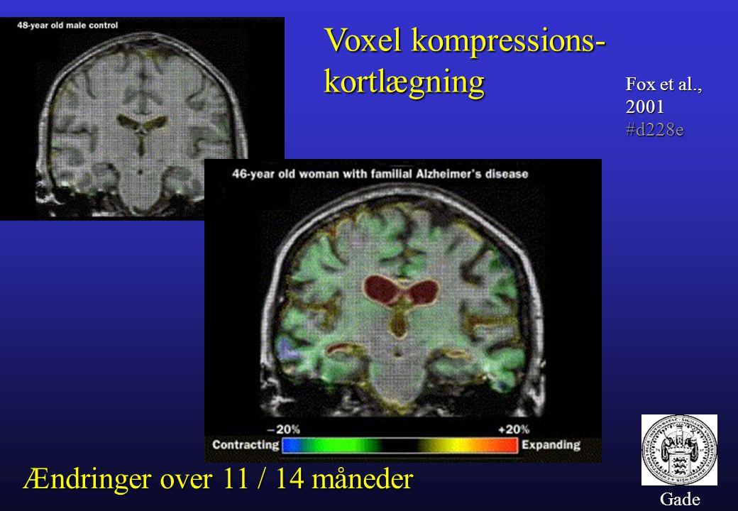 Voxel kompressions- kortlægning Ændringer over 11 / 14 måneder
