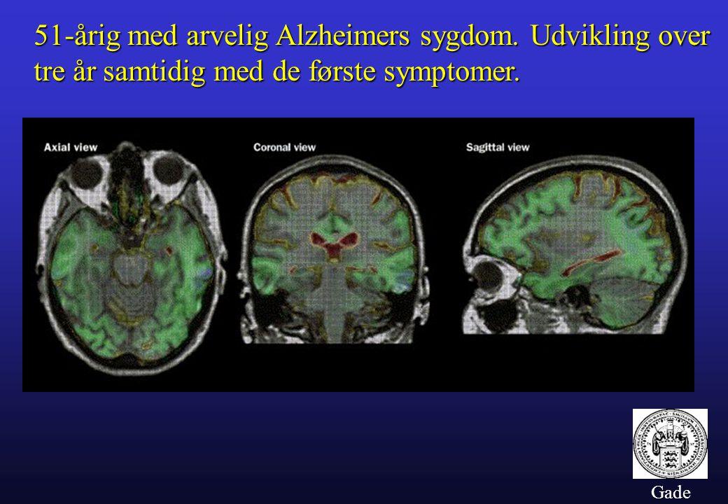 51-årig med arvelig Alzheimers sygdom. Udvikling over