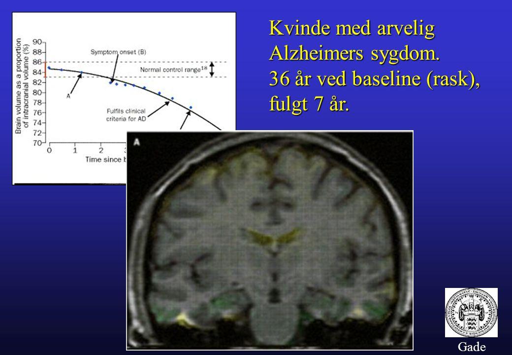 Kvinde med arvelig Alzheimers sygdom. 36 år ved baseline (rask),