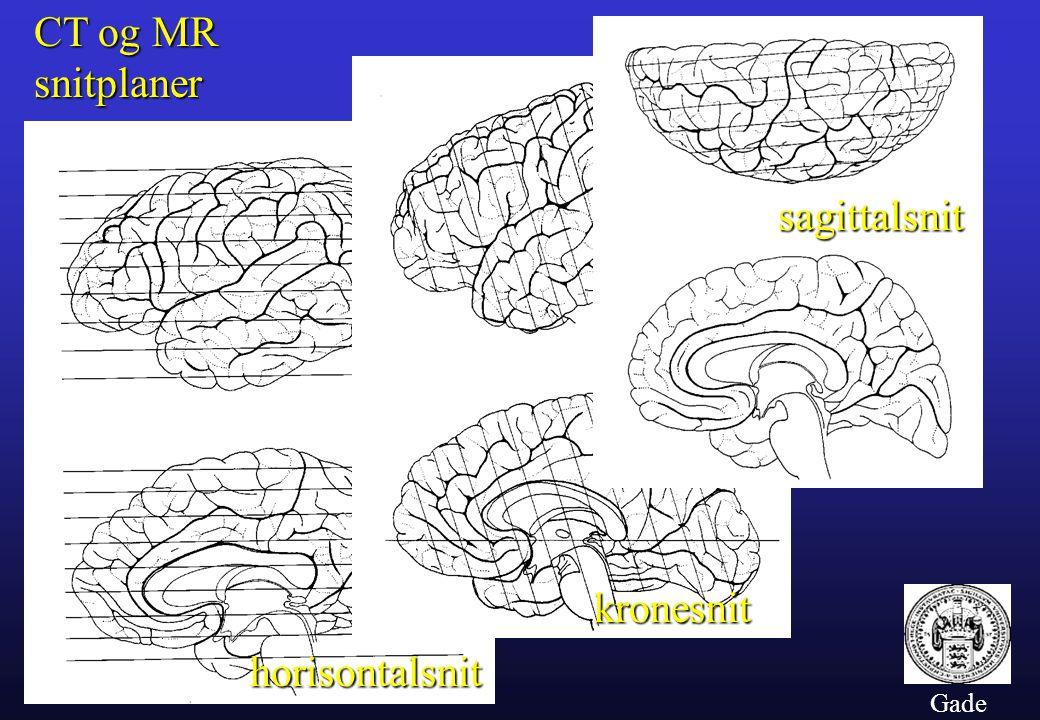 CT og MR snitplaner sagittalsnit kronesnit horisontalsnit Gade