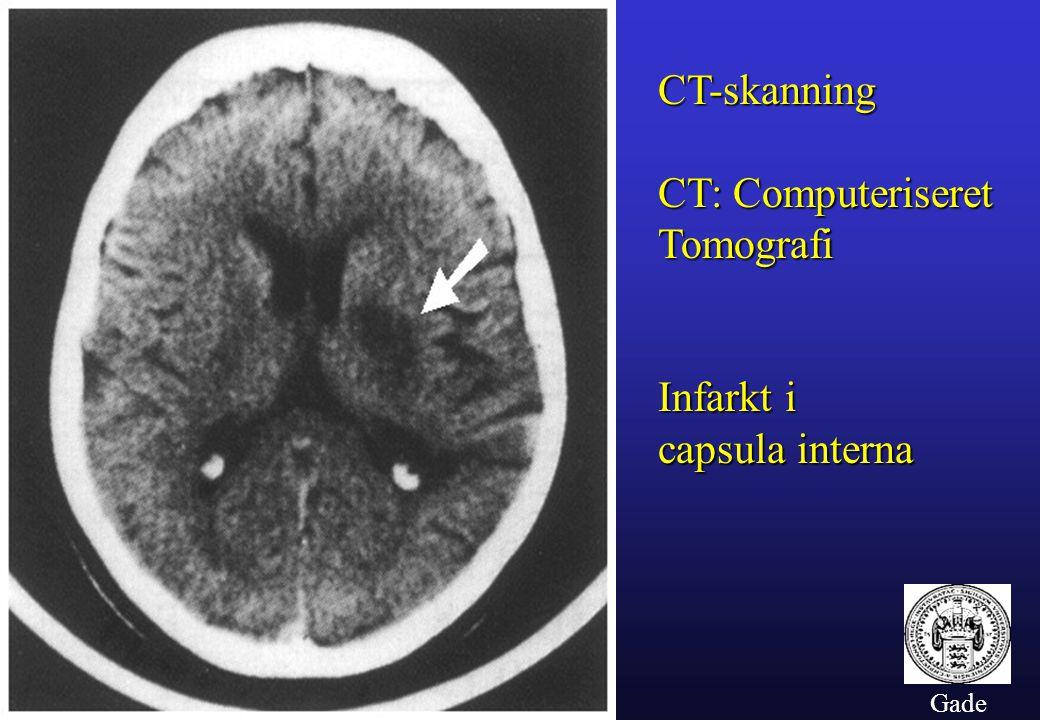 CT-skanning CT: Computeriseret Tomografi Infarkt i capsula interna