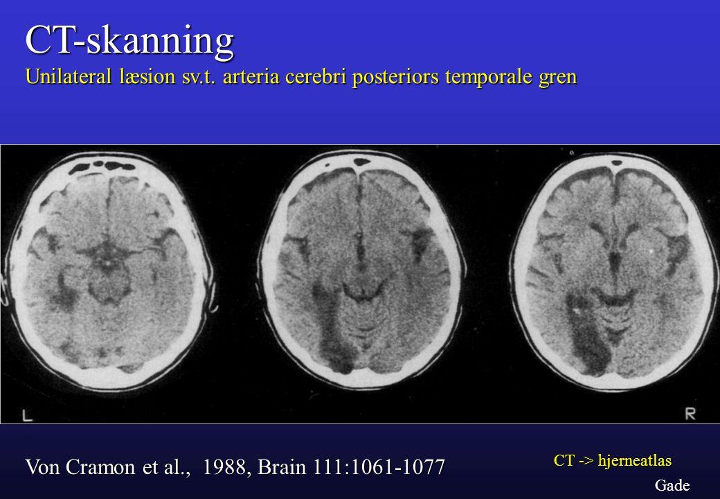 CT-skanning Unilateral læsion sv.t. arteria cerebri posteriors temporale gren. Von Cramon et al., 1988, Brain 111:1061-1077.