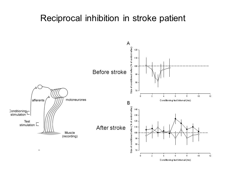 Reciprocal inhibition in stroke patient