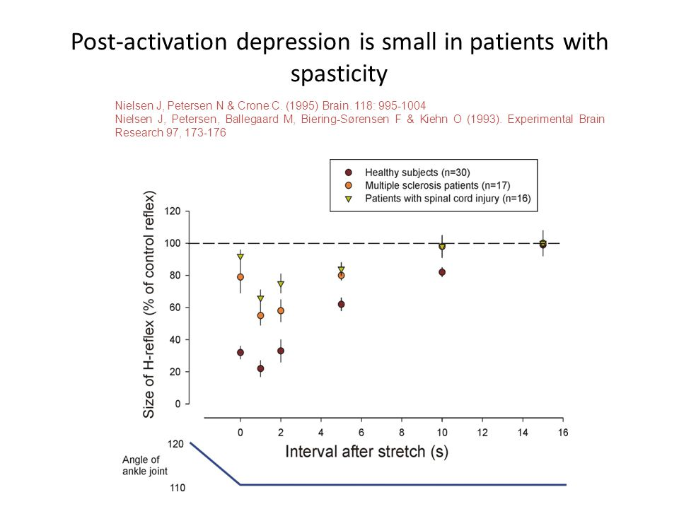 Post-activation depression is small in patients with spasticity