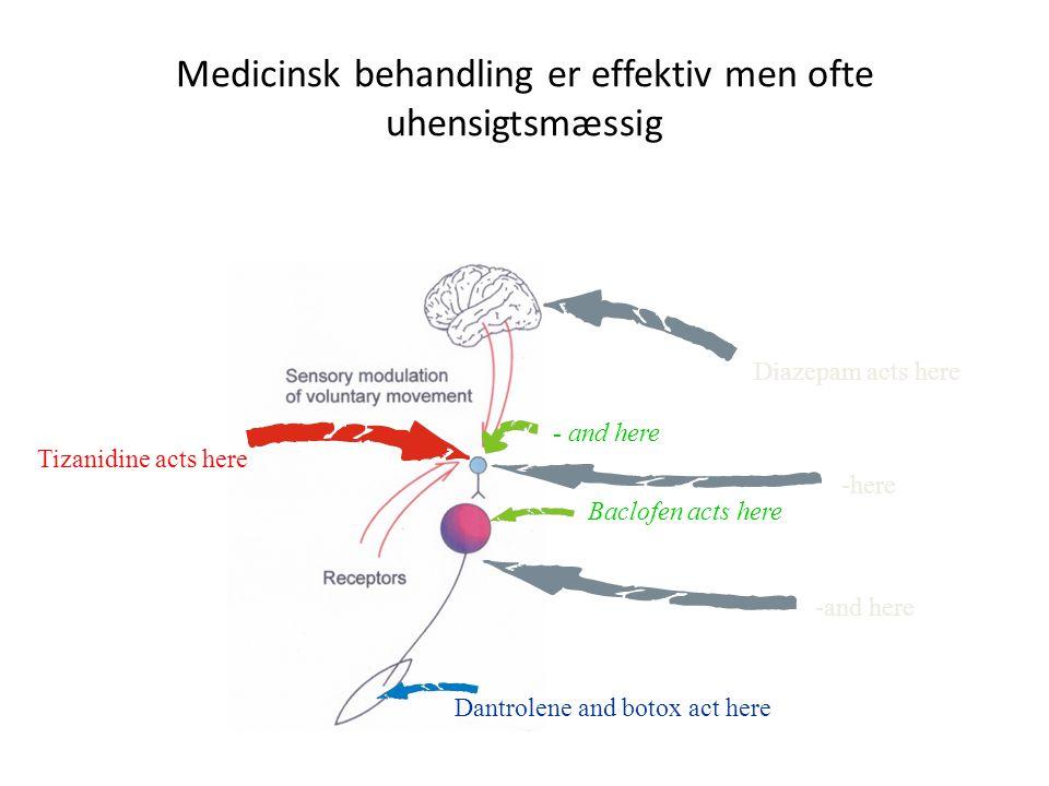 Medicinsk behandling er effektiv men ofte uhensigtsmæssig