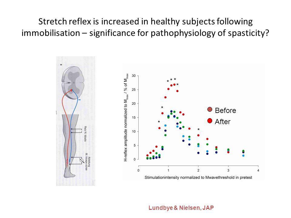 Stretch reflex is increased in healthy subjects following immobilisation – significance for pathophysiology of spasticity