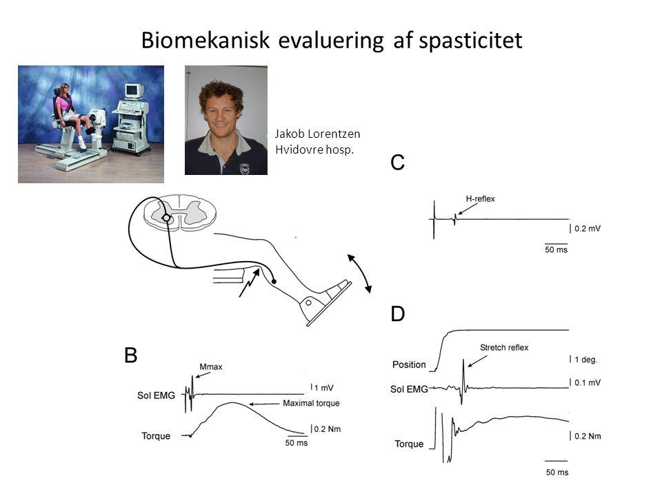 Biomekanisk evaluering af spasticitet
