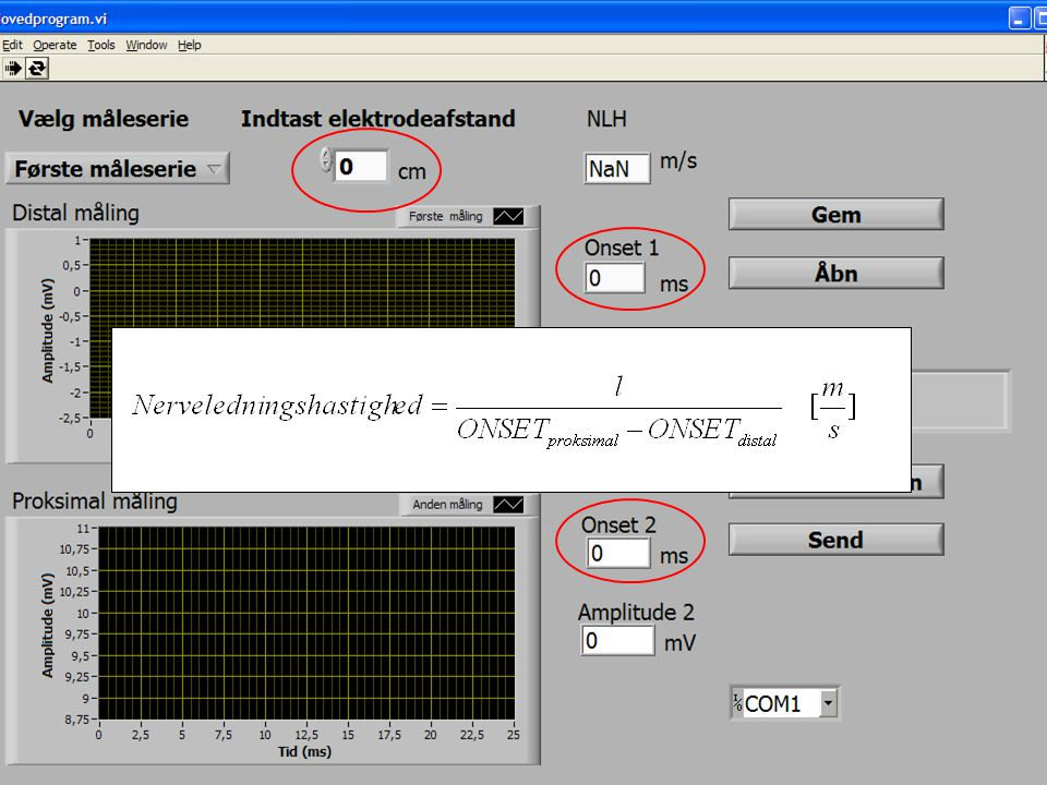 Her ses den grænseflade som operatøren skal benytte sammen med systemet.