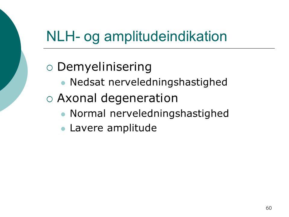 NLH- og amplitudeindikation