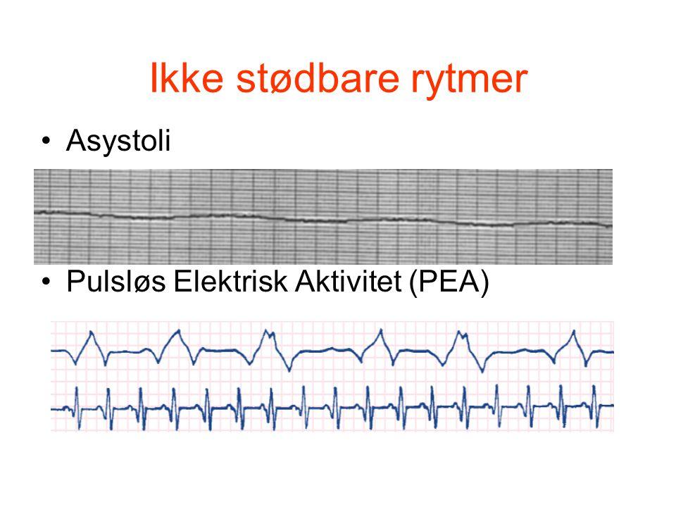 Ikke stødbare rytmer Asystoli Pulsløs Elektrisk Aktivitet (PEA)