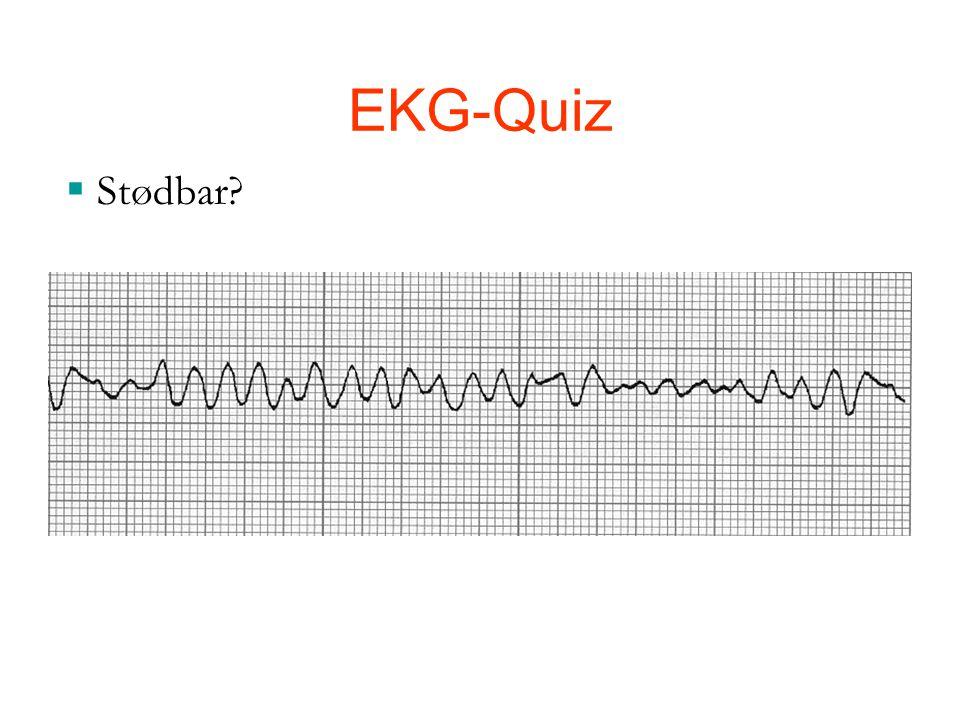 EKG-Quiz Stødbar Ja, det er en VF 30