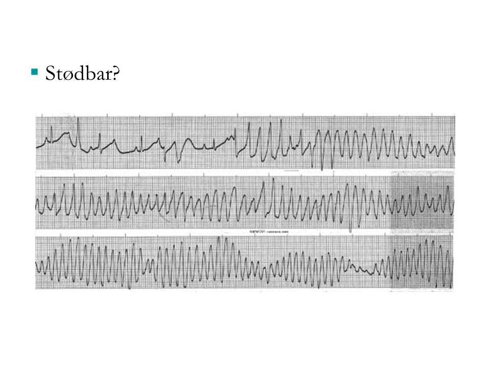 Stødbar Stødbar: ventrikulær takykardi (torsade de pointe) 33