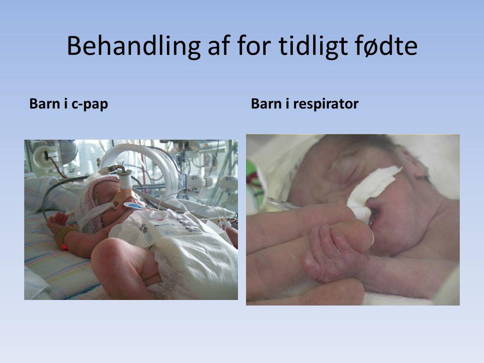 Behandling af for tidligt fødte