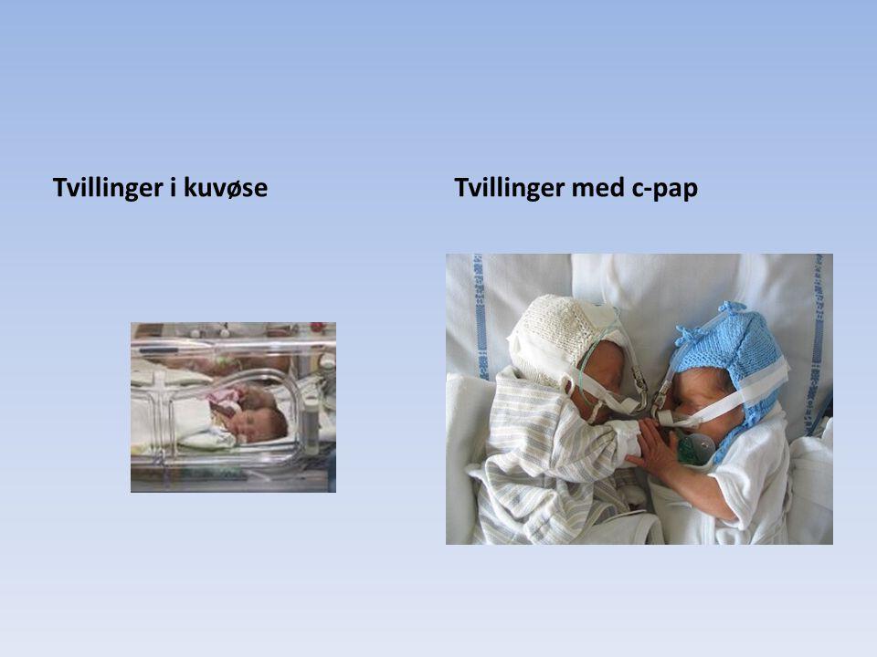 Tvillinger i kuvøse Tvillinger med c-pap