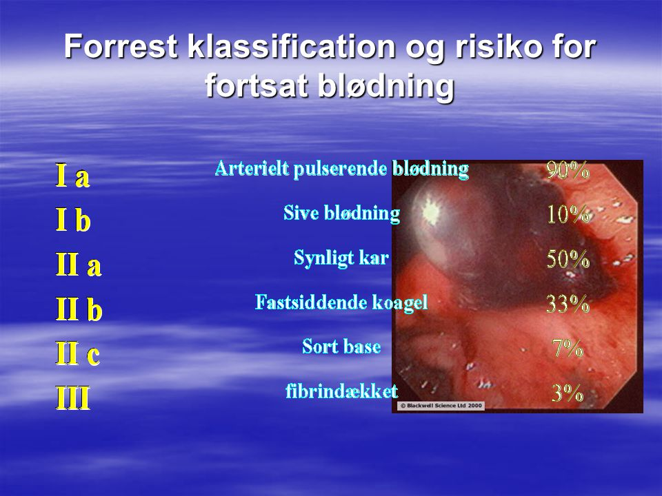 Forrest klassification og risiko for fortsat blødning