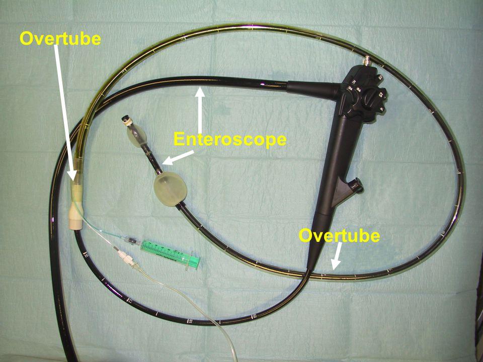 Overtube Enteroscope Overtube