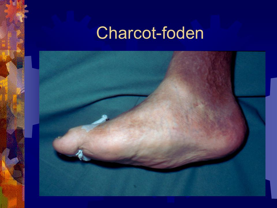 Charcot-foden