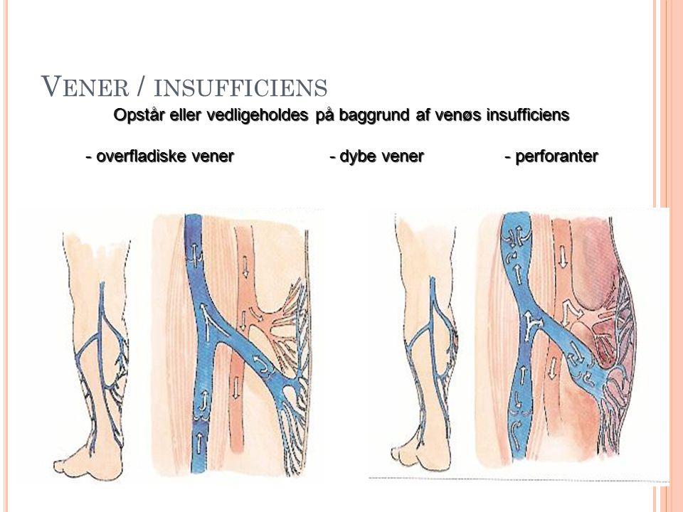 Vener / insufficiens Opstår eller vedligeholdes på baggrund af venøs insufficiens.