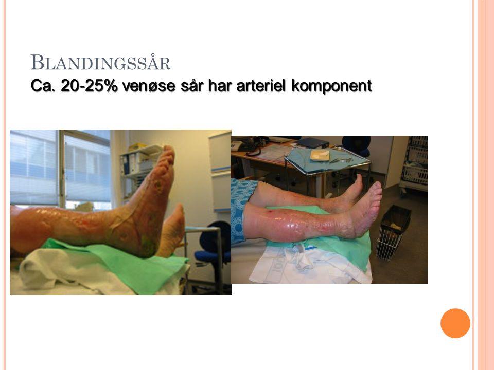 Blandingssår Ca. 20-25% venøse sår har arteriel komponent