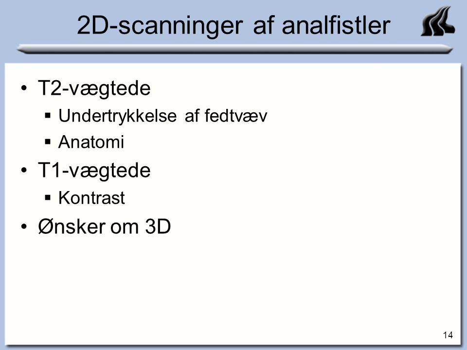 2D-scanninger af analfistler