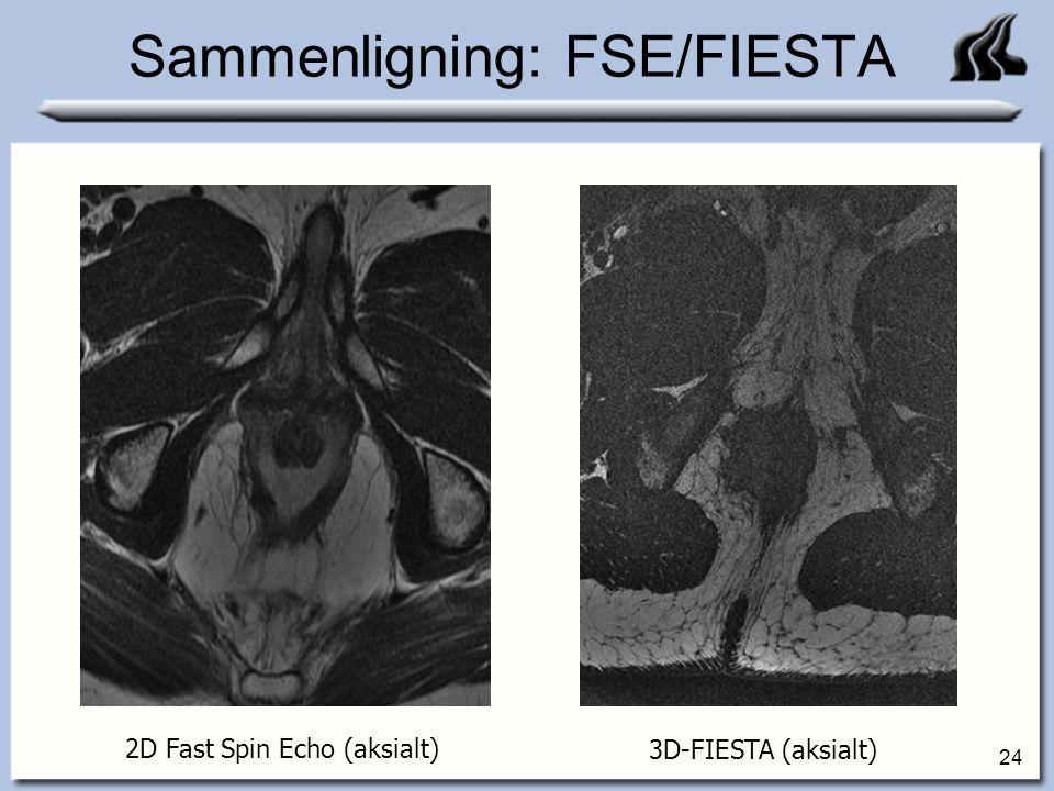 Sammenligning: FSE/FIESTA