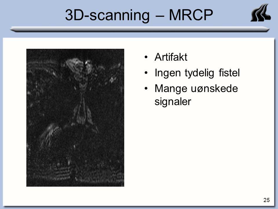 3D-scanning – MRCP Artifakt Ingen tydelig fistel