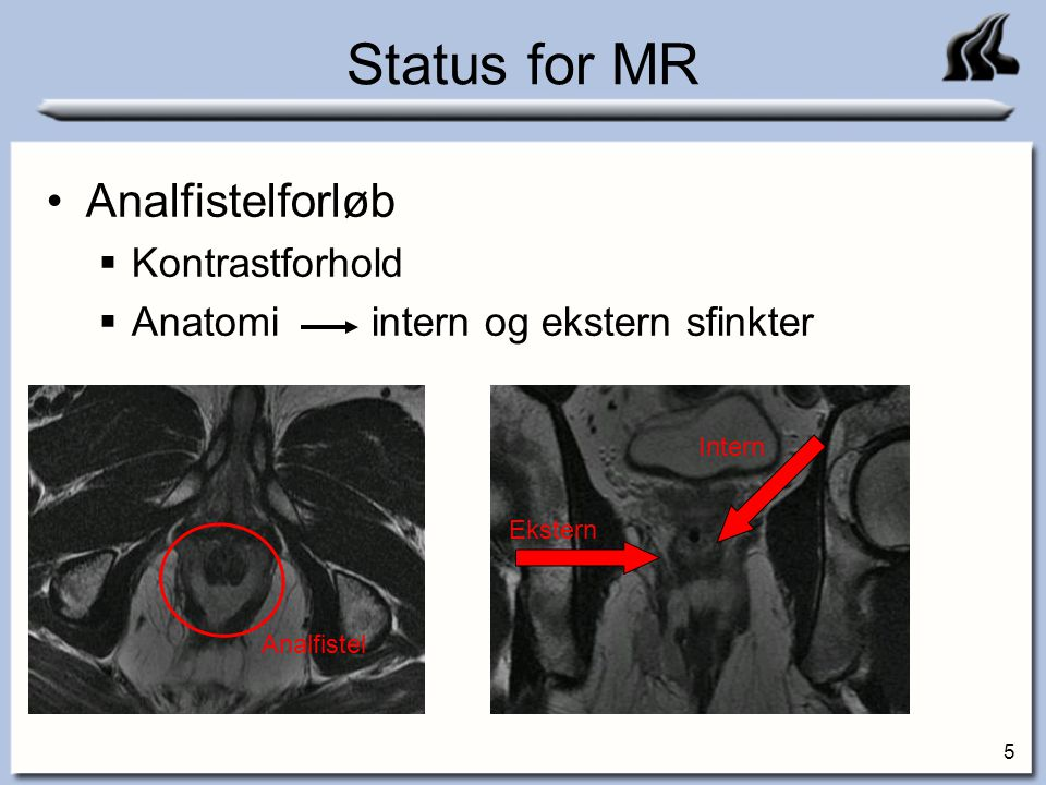 Status for MR Analfistelforløb Kontrastforhold