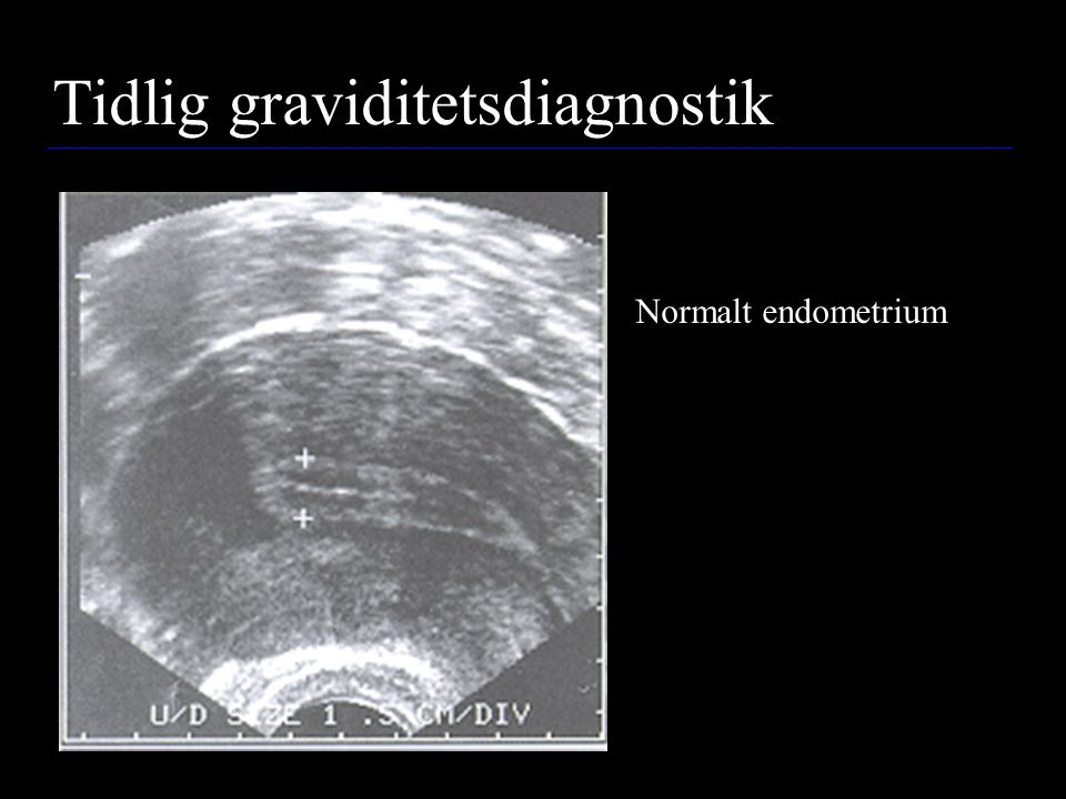 Tidlig graviditetsdiagnostik