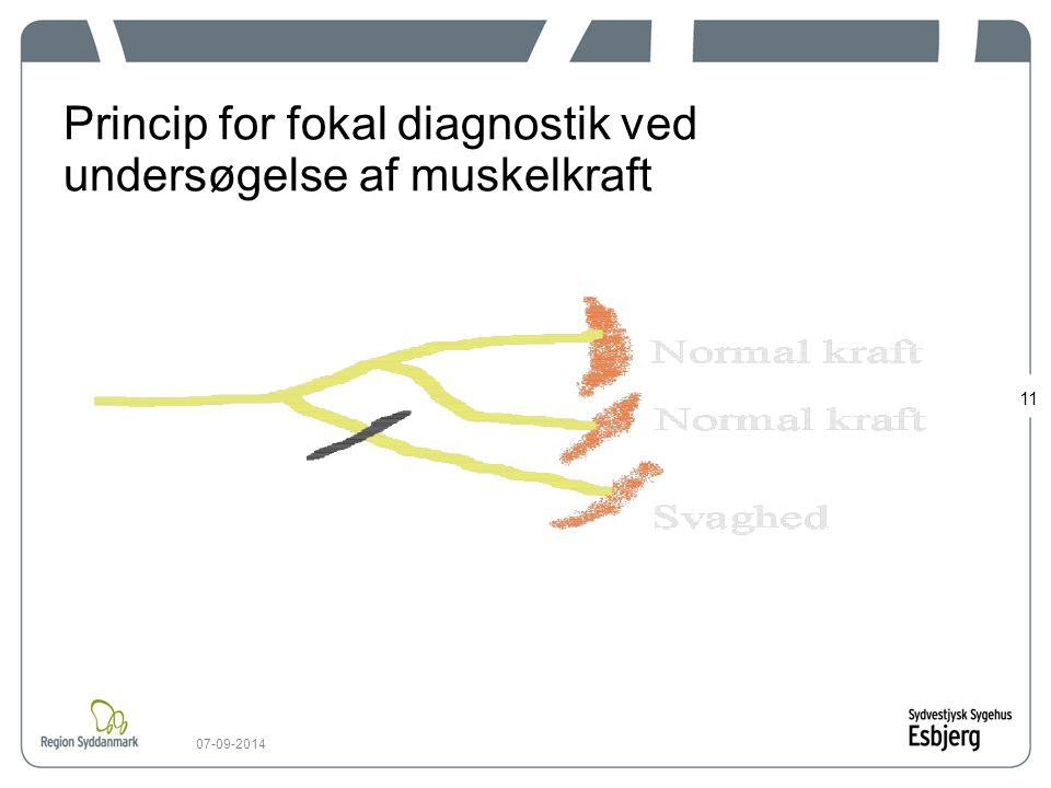 Princip for fokal diagnostik ved undersøgelse af muskelkraft
