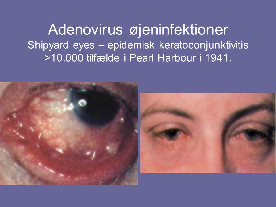 Adenovirus øjeninfektioner Shipyard eyes – epidemisk keratoconjunktivitis >10.000 tilfælde i Pearl Harbour i 1941.