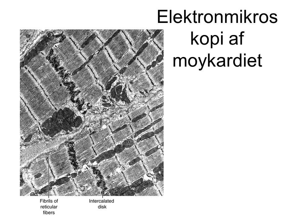 Elektronmikroskopi af moykardiet