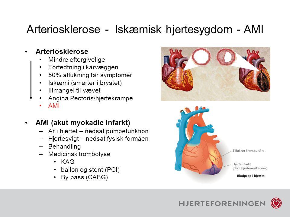 Arteriosklerose - Iskæmisk hjertesygdom - AMI