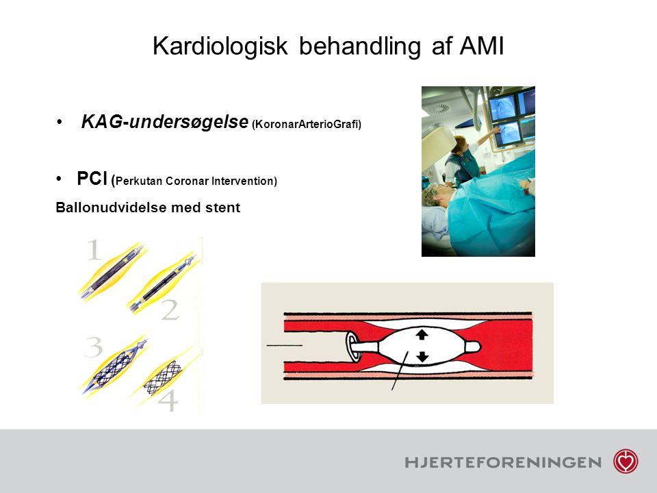 Kardiologisk behandling af AMI