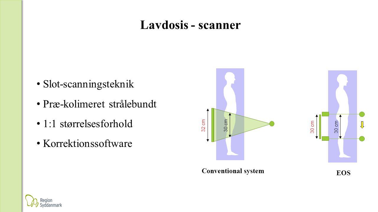 Lavdosis - scanner Slot-scanningsteknik Præ-kolimeret strålebundt