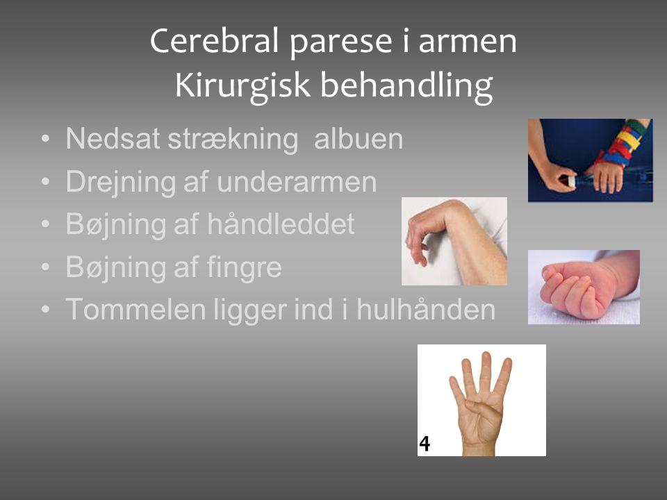 Cerebral parese i armen Kirurgisk behandling