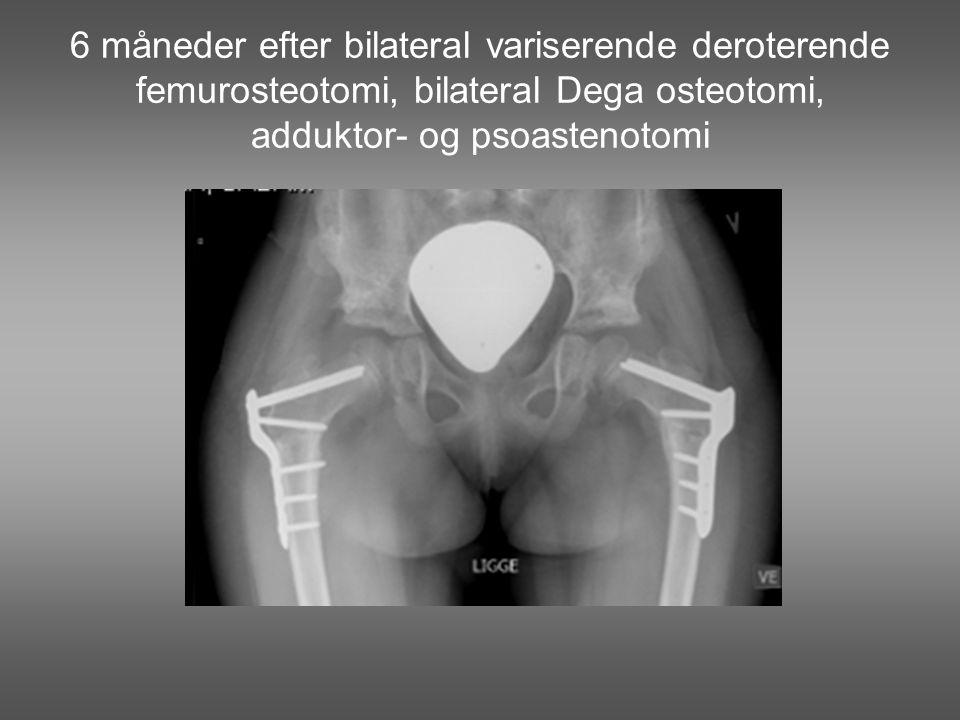 6 måneder efter bilateral variserende deroterende femurosteotomi, bilateral Dega osteotomi, adduktor- og psoastenotomi
